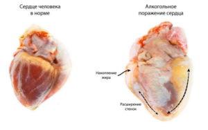 Негативное влияние алкоголя на сердце