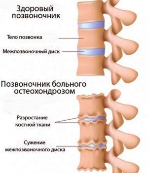 osteohondroz pozvonochnika