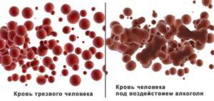 изменения в крови при употреблении алкоголя