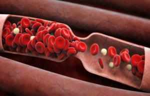 Что делает алкоголь с кровью — разжижает или сгущает?