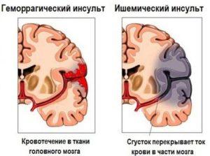 Инсульт— это грозная патология
