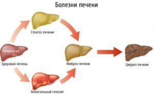 bolezni pecheni