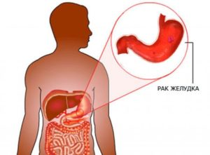 rak jeludka