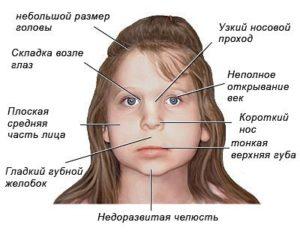Fetalnyiy alkogolnyiy sindrom